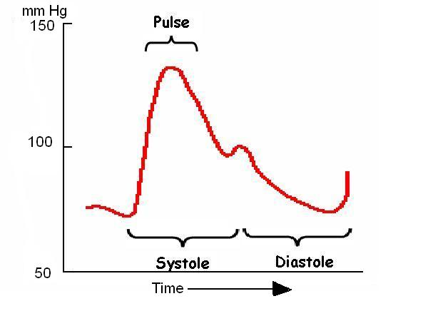Pulse with diastole and systole.JPG
